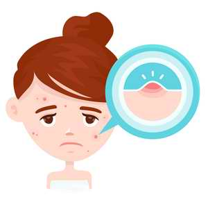 Le guarana permet de lutter contre l'acné et les problèmes de peau