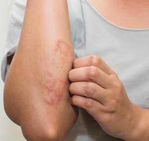 L'huile essentielle fonctionne très bien sur l'eczema, les parasitoses, etc.