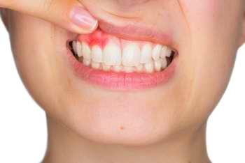 L'essence de citron est utile en cas de gingivite, parodontose, aphte