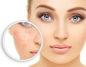 Le palmarosa permet de traiter l'eczema et les mycoses